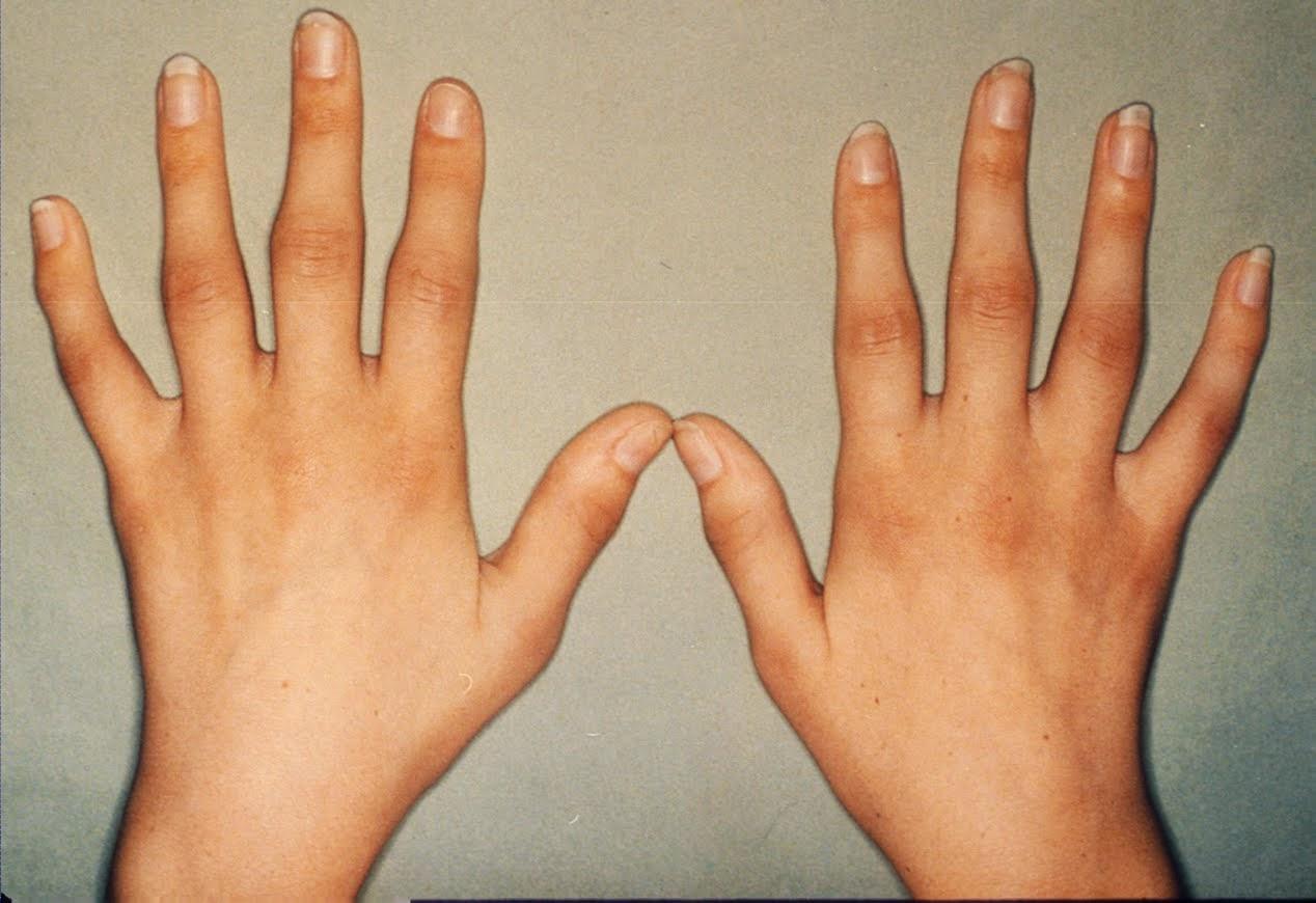 Tentang penyakit rheumatoid arthritis